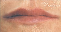 lips after restylane
