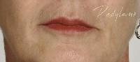 restylane lips