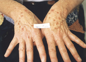 Age spots on hands