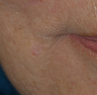 Mole removed with laser
