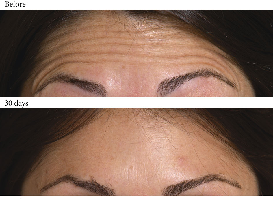 forehead lines after botox