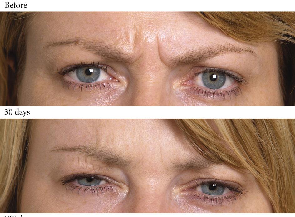 Expert Botox treatment, Norwich, Norfolk  UK
