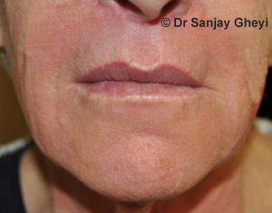 lip lift procedure
