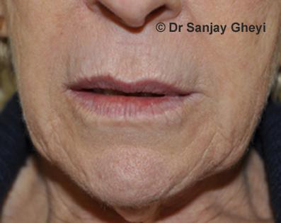 elongated upper lip