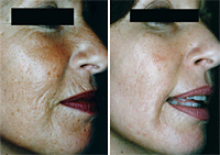 pci for wrinkles