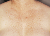 Poikiloderma of chest after IPL treatment