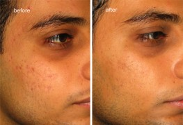 pci for acne scars
