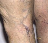 varicose veins on legs